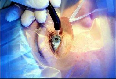 Клинические результаты хирургической резекции склеры у больных с первичной глаукомой