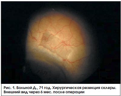 Рис. 1. Больной Д., 71 год. Хирургическая резекция склеры. Внешний вид через 6 мес. после операции