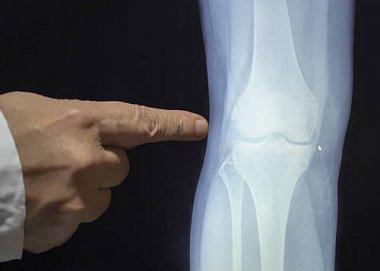 Механизм-направленная терапия боли при остеоартрите