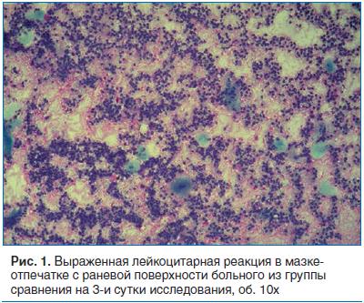 Рис. 1. Выраженная лейкоцитарная реакция в мазке- отпечатке с раневой поверхности больного из группы сравнения на 3-и сутки исследования, об. 10х