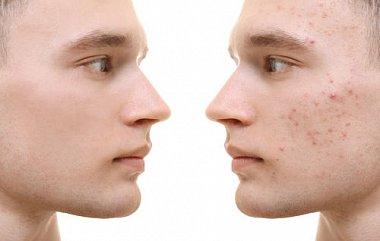 Особенности эффективности мультикомпонентного ароматического ретиноида в наружной терапии легких и среднетяжелых форм акне