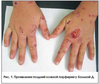 Рис. 1. Проявления поздней кожной порфирии у больной Д.