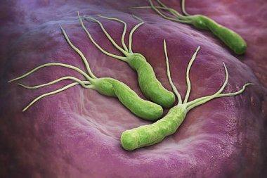 Причины безуспешности эрадикационной терапии, несвязанные сантибиотикорезистентностью Helicobacter pylori, ипути их преодоления