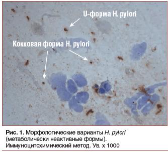 Рис. 1. Морфологические варианты H. pylori (метаболически неактивные формы). Иммуноцитохимический метод. Ув. х 1000