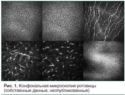 Рис. 1. Конфокальная микроскопия роговицы (собственные данные, неопубликованные)
