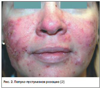 Розовые угри и родственные заболевания