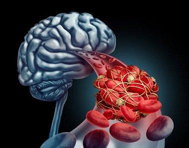 Синдром недостаточности кровотока вартериях вертебробазилярной системы