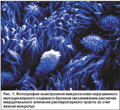 Рис. 1. Фотография электронной микроскопии нарушенного мукоцилиарного клиренса бронхов (вклинивание ресничек мерцательного эпителия респираторного тракта за счет вязкой мокроты)