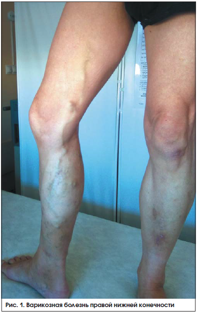 Рис. 1. Варикозная болезнь правой нижней конечности
