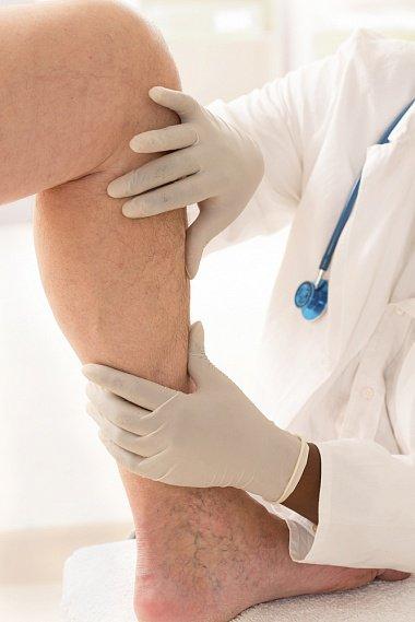 Современный подход к терапии патологии кожи, связанной с венозной недостаточностью