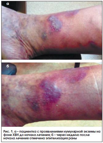 Рис. 1. а – пациентка с проявлениями нумулярной экземы на фоне ХВН до начала лечения; б – через неделю после начала лечения отмечена эпителизация раны