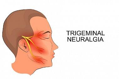 Тригеминальные боли: топическая диагностика, клинические проявления