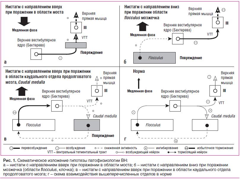 Рис. 1. Схематическое изложение гипотезы патофизиологии ВН