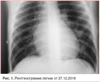 Рис. 1. Рентгенограмма легких от 27.12.2016