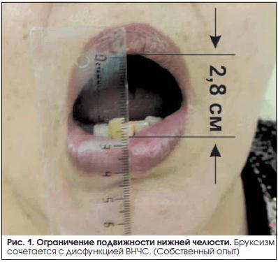Рис. 1. Ограничение подвижности нижней челюсти.