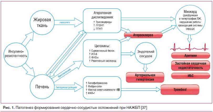 Рис. 1. Патогенез формирования сердечно-сосудистых осложнений при НАЖБП [37]