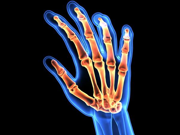 Ученые обнаружили ген, провоцирующий артрит. Открытие 2019 года