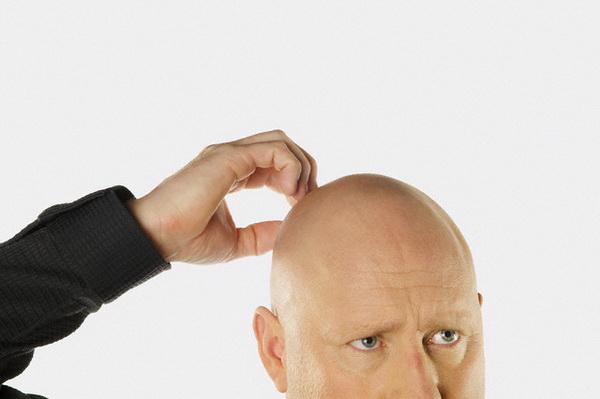 Лысые мужчины в 2,5 раз чаще болеют Covid-19 в тяжелой форме, чем мужчины с полным волосяным покровом на голове
