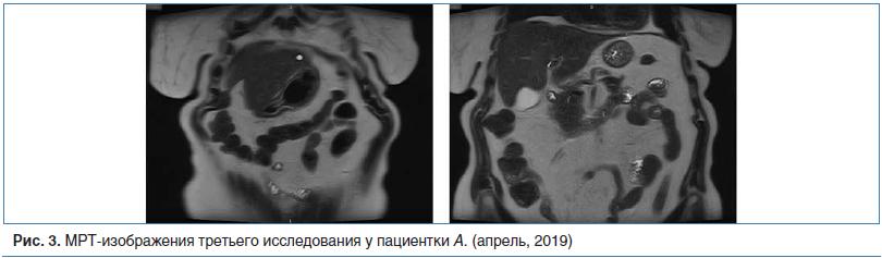 Рис. 3. МРТ-изображения третьего исследования у пациентки А. (апрель, 2019)