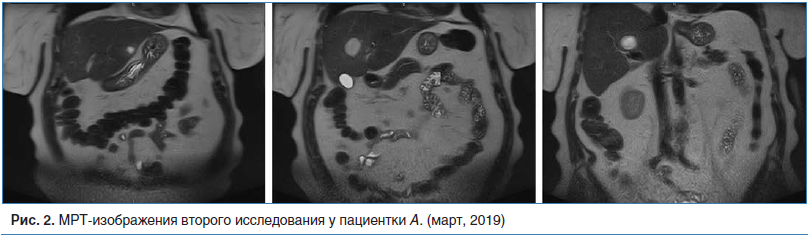 Рис. 2. МРТ-изображения второго исследования у пациентки А. (март, 2019)