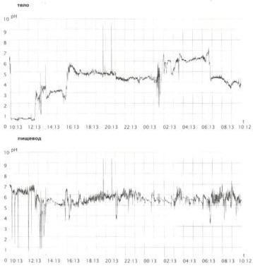 Рис. 1. Суточное мониторирование рН больного М., 31 г., ЯБ двенадцатиперстной кишки