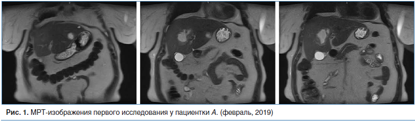 Рис. 1. МРТ-изображения первого исследования у пациентки А. (февраль, 2019)