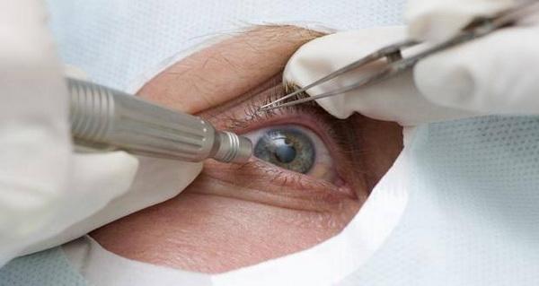 Способы лечения катаракты