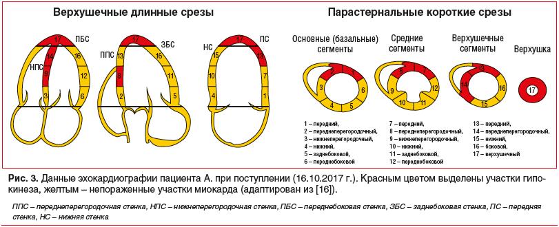 Рис. 3. Данные эхокардиографии пациента А. при поступлении (16.10.2017 г.). Красным цветом выделены участки гипо- кинеза, желтым – непораженные участки миокарда (адаптирован из [16]).