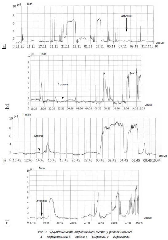 Рис. 2. Эффективность атропинового теста у разных больных. а — отрицательная; б — слабая; в — умеренная; г — выраженная