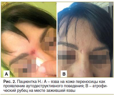 Рис. 2. Пациентка Н.: А – язва на коже переносицы как проявление аутодеструктивного поведения; В – атрофический рубец на месте зажившей язвы
