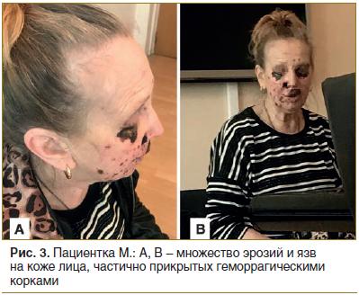 Рис. 3. Пациентка М.: А, В – множество эрозий и язв на коже лица, частично прикрытых геморрагическими корками