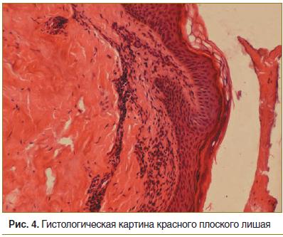 Рис. 4. Гистологическая картина красного плоского лишая