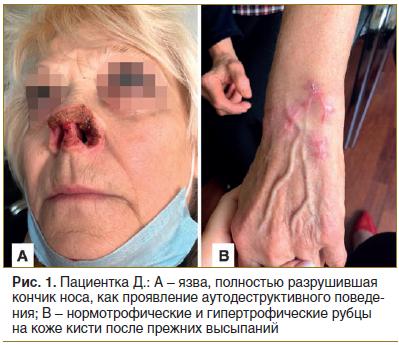 Рис. 1. Пациентка Д.: А – язва, полностью разрушившая кончик носа, как проявление аутодеструктивного поведения; В – нормотрофические и гипертрофические рубцы на коже кисти после прежних высыпаний