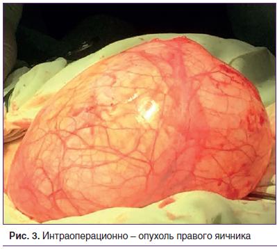 Рис. 3. Интраоперационно – опухоль правого яичника
