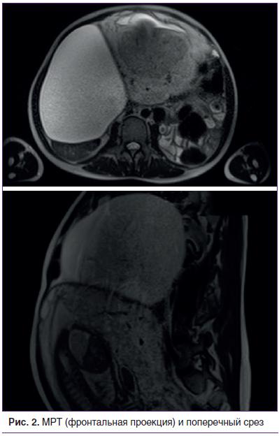 Рис. 2. МРТ (фронтальная проекция) и поперечный срез