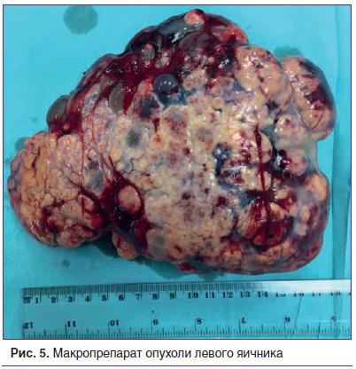 Рис. 5. Макропрепарат опухоли левого яичника