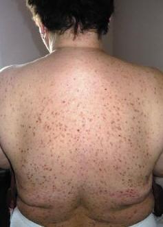 Рис. 5. Генерализованный кожный макулярный мастоцитоз взрослых