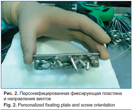 Рис. 2. Персонифицированная фиксирующая пластина и направления винтов Fig. 2. Personalized fixating plate and screw orientation