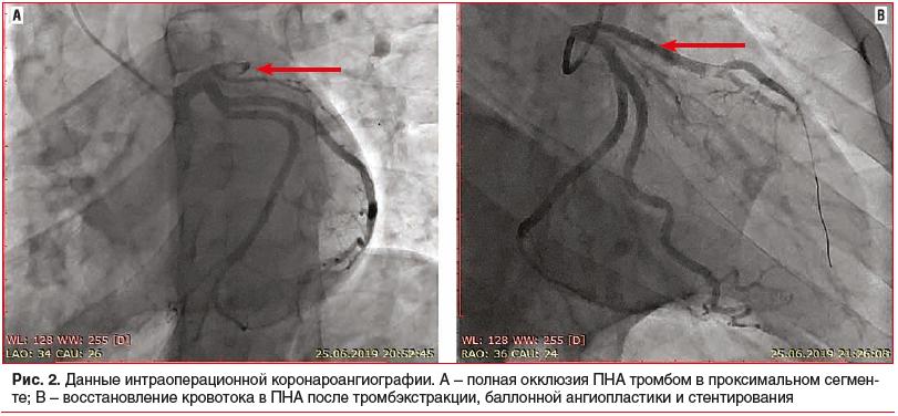 Рис. 2. Данные интраоперационной коронароангиографии. А – полная окклюзия ПНА тромбом в проксимальном сегменте; В – восстановление кровотока в ПНА после тромбэкстракции, баллонной ангиопластики и стентирования