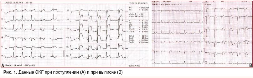 Рис. 1. Данные ЭКГ при поступлении (А) и при выписке (В)