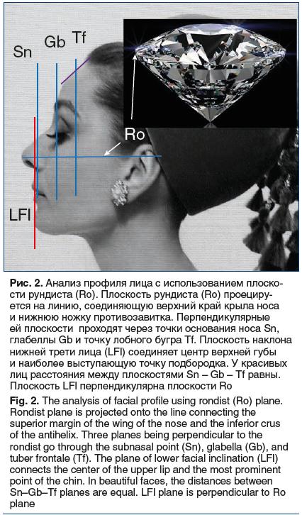 Рис. 2. Анализ профиля лица с использованием плоско- сти рундиста (Ro). Плоскость рундиста (Ro) проециру- ется на линию, соединяющую верхний край крыла носа и нижнюю ножку противозавитка. Перпендикулярные ей плоскости проходят через точки основания носа S