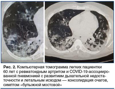 Рис. 2. Компьютерная томограмма легких пациентки 60 лет с ревматоидным артритом и COVID-19-ассоцииро- ванной пневмонией с развитием дыхательной недоста- точности и летальным исходом –– консолидация очагов, симптом «булыжной мостовой»
