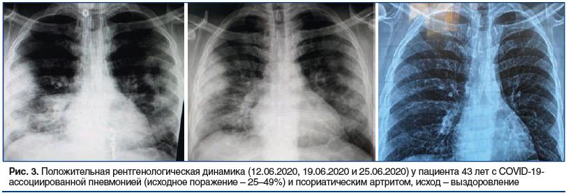 Рис. 3. Положительная рентгенологическая динамика (12.06.2020, 19.06.2020 и 25.06.2020) у пациента 43 лет с COVID-19- ассоциированной пневмонией (исходное поражение – 25–49%) и псориатическим артритом, исход – выздоровление