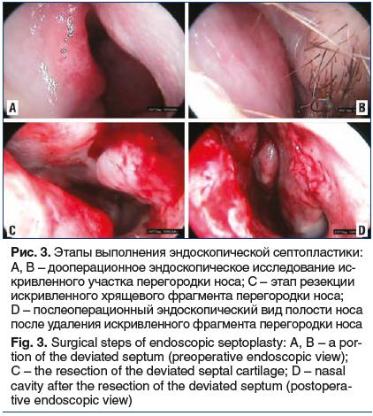 Рис. 3. Этапы выполнения эндоскопической септопластики: A, B – дооперационное эндоскопическое исследование ис- кривленного участка перегородки носа; C – этап резекции искривленного хрящевого фрагмента перегородки носа; D – послеоперационный эндоскопически