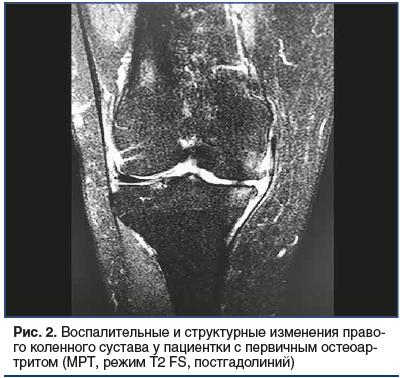 Рис. 2. Воспалительные и структурные изменения право- го коленного сустава у пациентки с первичным остеоартритом (МРТ, режим Т2 FS, постгадолиний)