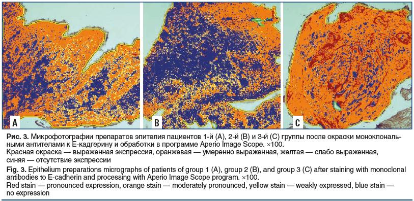 Рис. 3. Микрофотографии препаратов эпителия пациентов 1-й (А), 2-й (B) и 3-й (С) группы после окраски моноклональ- ными антителами к Е-кадгерину и обработки в программе Aperio Image Scope. ×100. Красная окраска — выраженная экспрессия, оранжевая — умеренн