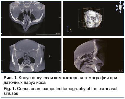 Рис. 1. Конусно-лучевая компьютерная томография при- даточных пазух носа Fig. 1. Conus beam computed tomography of the paranasal sinuses