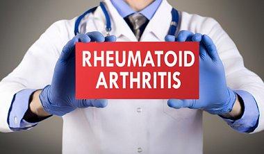 Ревматоидный артрит: роль врача общей практики в улучшении исходов заболевания