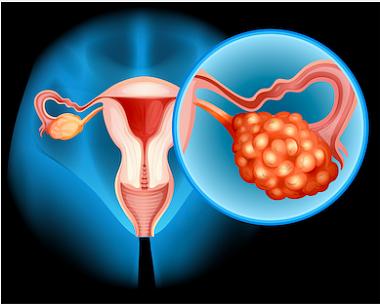 Синдром Труссо и рак яичников