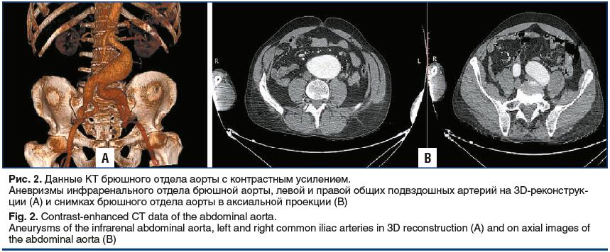 Рис. 2. Данные КТ брюшного отдела аорты с контрастным усилением. Аневризмы инфраренального отдела брюшной аорты, левой и правой общих подвздошных артерий на 3D-реконструкции (A) и снимках брюшного отдела аорты в аксиальной проекции (B) Fig. 2. Contrast-en